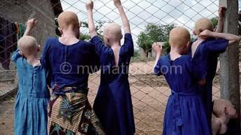 MHRC to research on albino killings