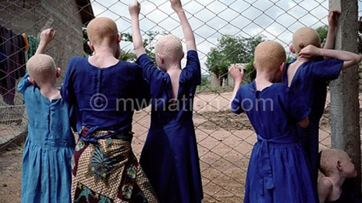 Sulom joins fight to defend albinos
