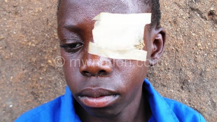 Precious with his bruised eye after treatment