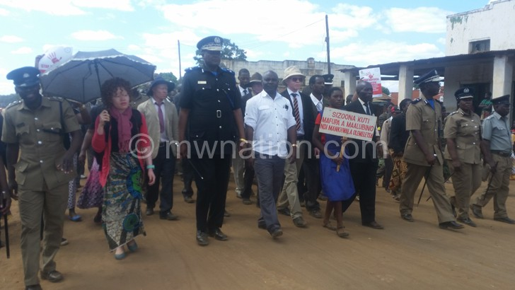 Police have been in the fore front condemning albino killings and abductions