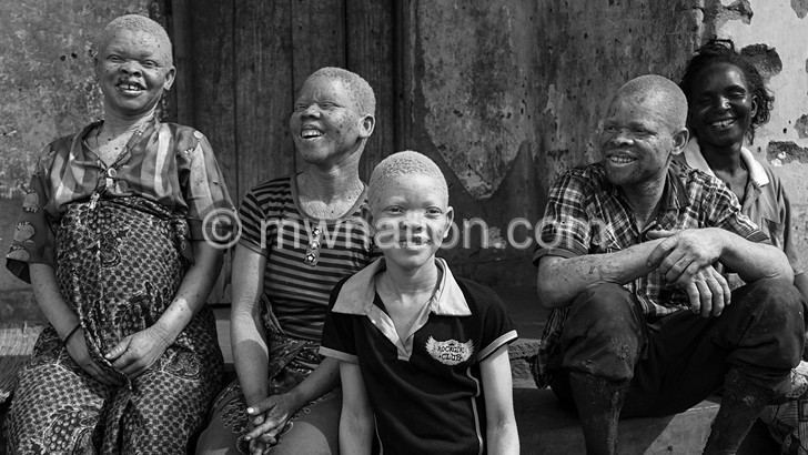 albino | The Nation Online