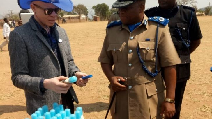Apam delighted with reduction in albino attacks
