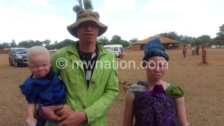 Being a family with albinism