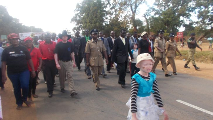 Police irk communities on albinos