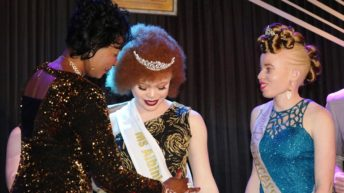 Miss Albinism Malawi outlines her plans